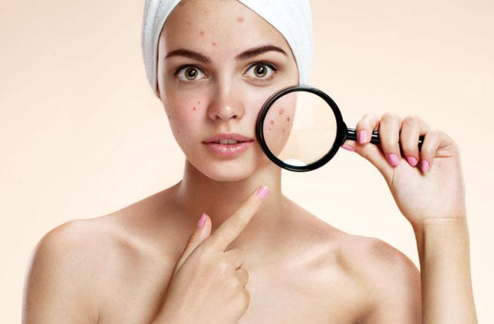 Acne: trattamento pelli impure