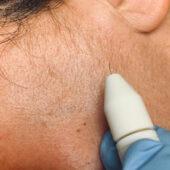 Elettro depilazione